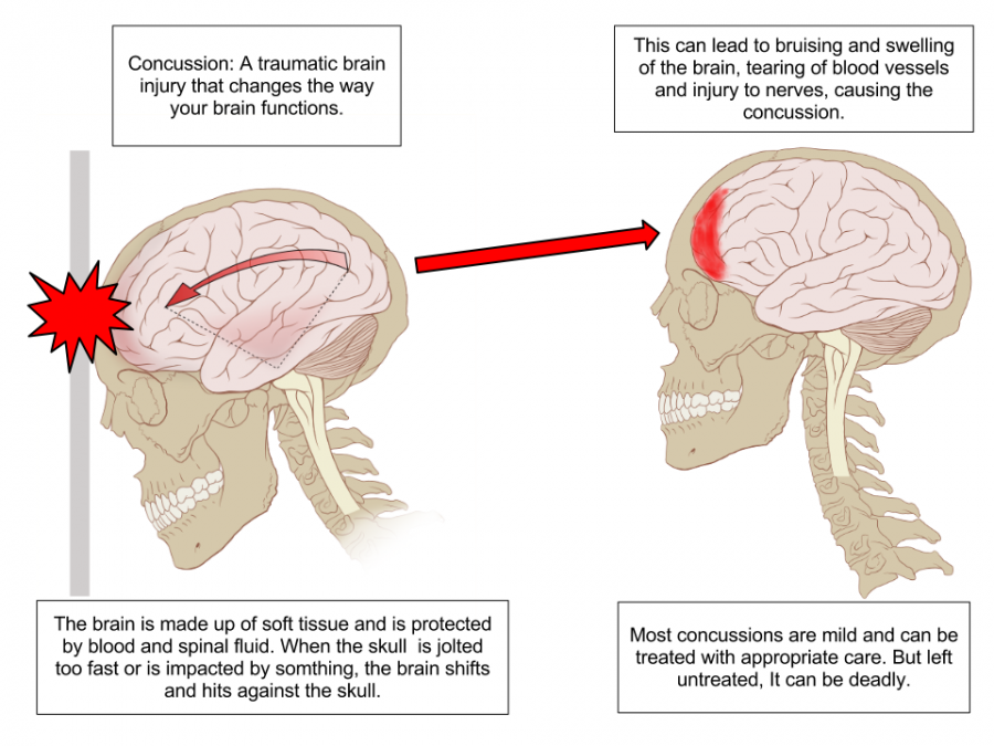 Photo explaining what happens during a concussion.
